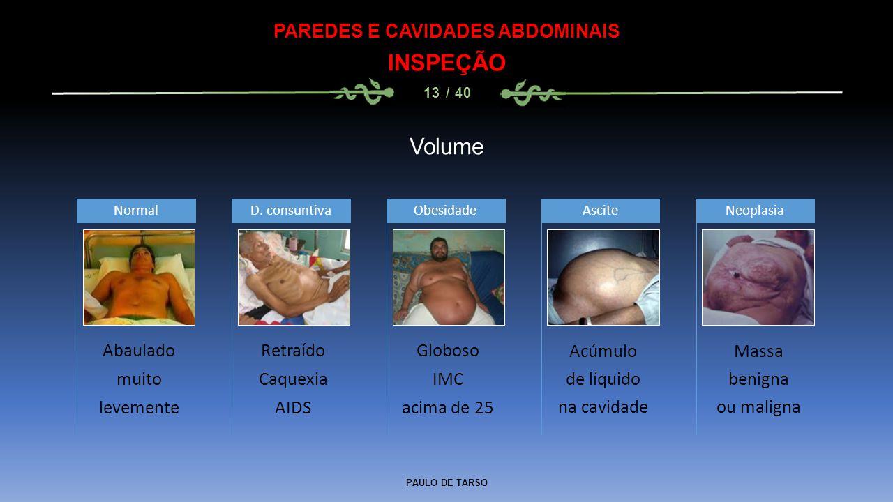 PAULO DE TARSO PAREDES E CAVIDADES ABDOMINAIS INSPEÇÃO 13 / 40 Volume Abaulado muito levemente Normal Retraído Caquexia AIDS D.