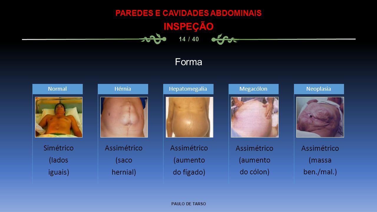 PAULO DE TARSO PAREDES E CAVIDADES ABDOMINAIS INSPEÇÃO 14 / 40 Forma Simétrico (lados iguais) Normal Assimétrico (saco hernial) Hérnia Assimétrico (aumento do fígado) HepatomegaliaMegacólonNeoplasia Assimétrico (massa ben./mal.) Assimétrico (aumento do cólon)