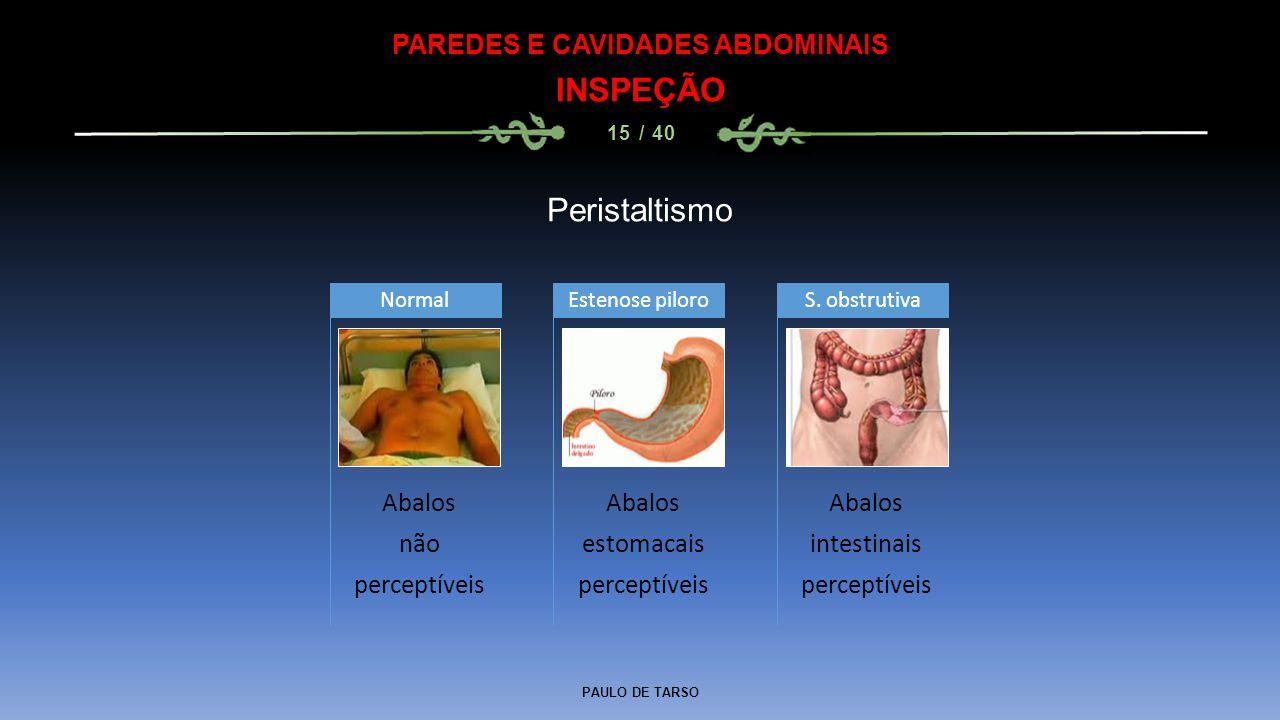 PAULO DE TARSO PAREDES E CAVIDADES ABDOMINAIS INSPEÇÃO 15 / 40 Peristaltismo Abalos não perceptíveis Normal Abalos estomacais perceptíveis Estenose piloro Abalos intestinais perceptíveis S.