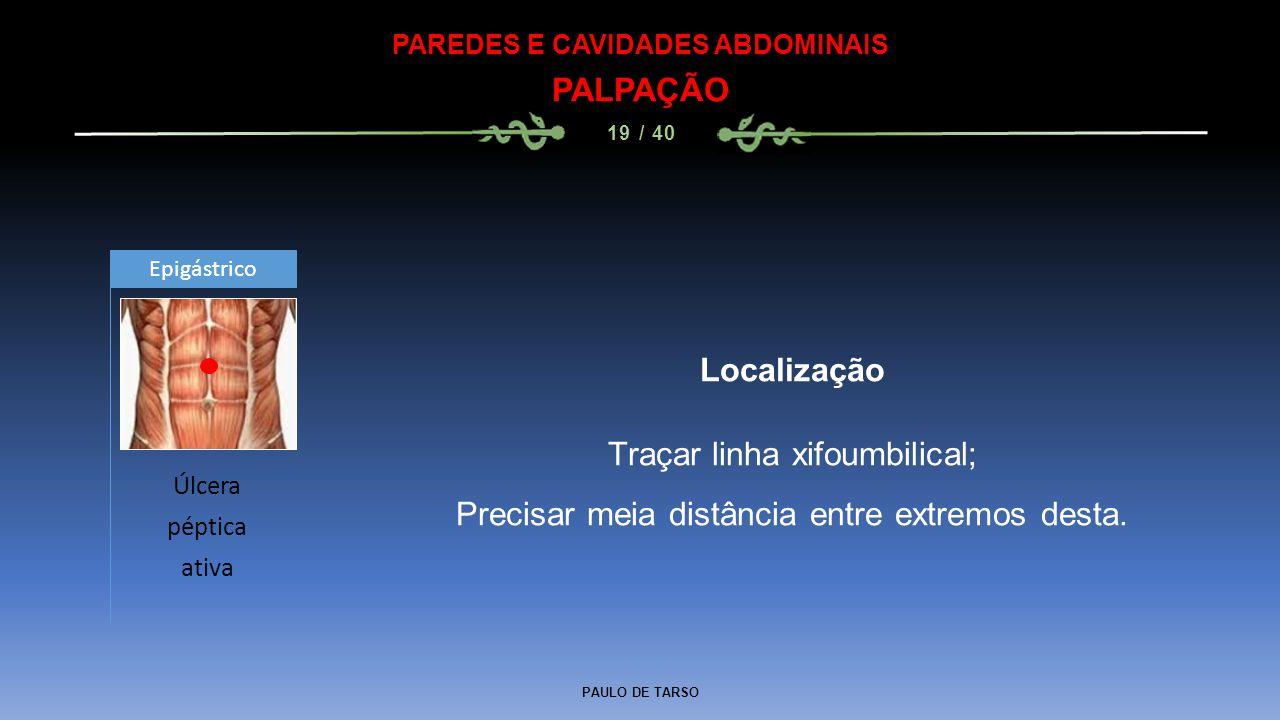 PAULO DE TARSO PAREDES E CAVIDADES ABDOMINAIS PALPAÇÃO 19 / 40 Localização Traçar linha xifoumbilical; Precisar meia distância entre extremos desta.