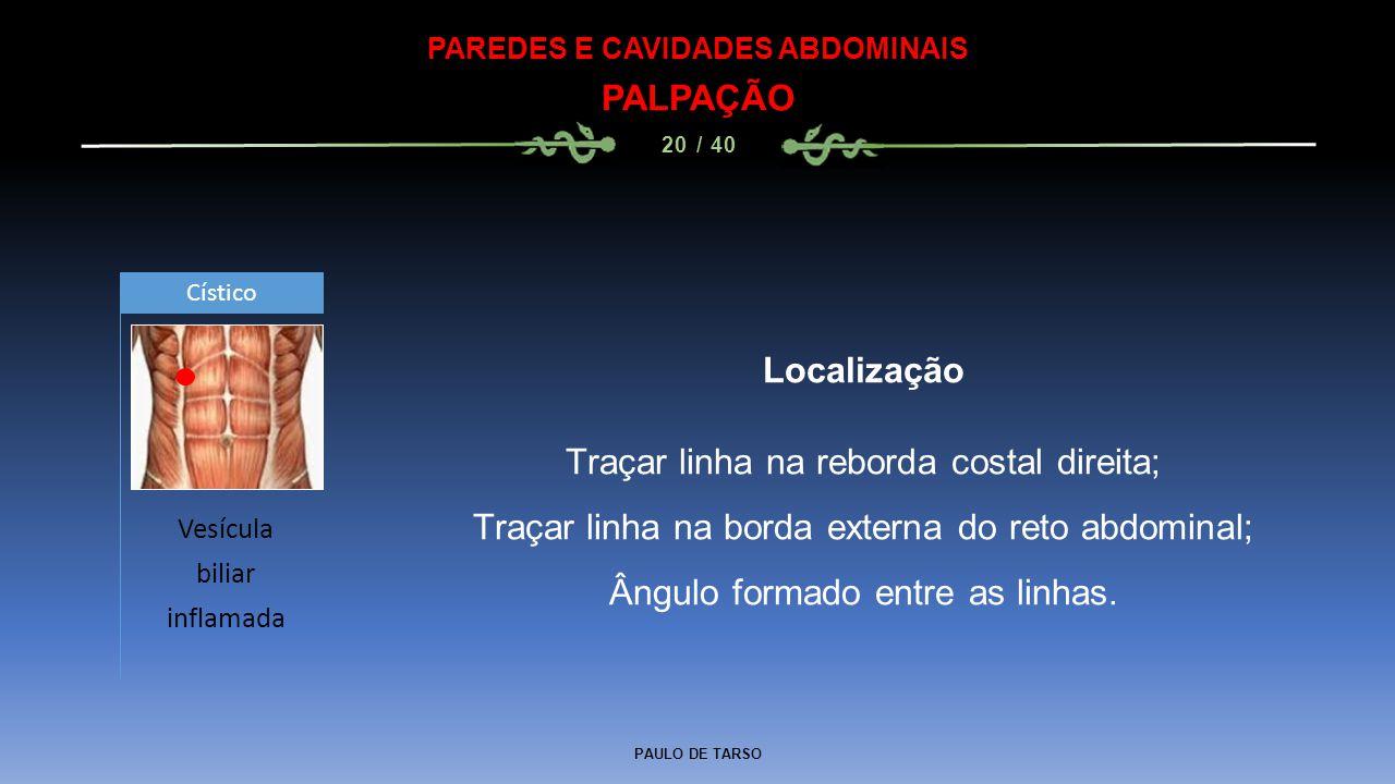 PAULO DE TARSO PAREDES E CAVIDADES ABDOMINAIS PALPAÇÃO 20 / 40 Localização Traçar linha na reborda costal direita; Traçar linha na borda externa do reto abdominal; Ângulo formado entre as linhas.