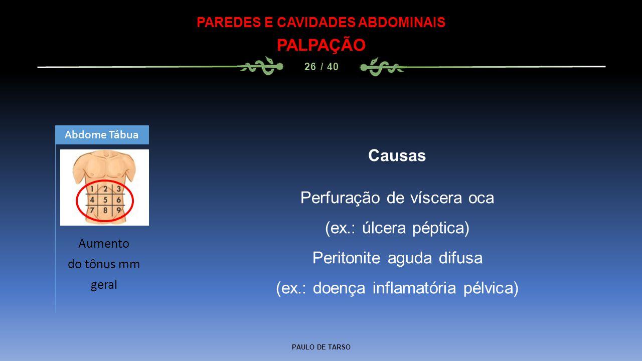 PAULO DE TARSO PAREDES E CAVIDADES ABDOMINAIS PALPAÇÃO 26 / 40 Causas Perfuração de víscera oca (ex.: úlcera péptica) Peritonite aguda difusa (ex.: doença inflamatória pélvica) Aumento do tônus mm geral Abdome Tábua