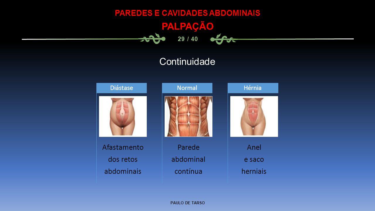 PAULO DE TARSO PAREDES E CAVIDADES ABDOMINAIS PALPAÇÃO 29 / 40 Continuidade Afastamento dos retos abdominais Diástase Parede abdominal contínua Normal Anel e saco herniais Hérnia