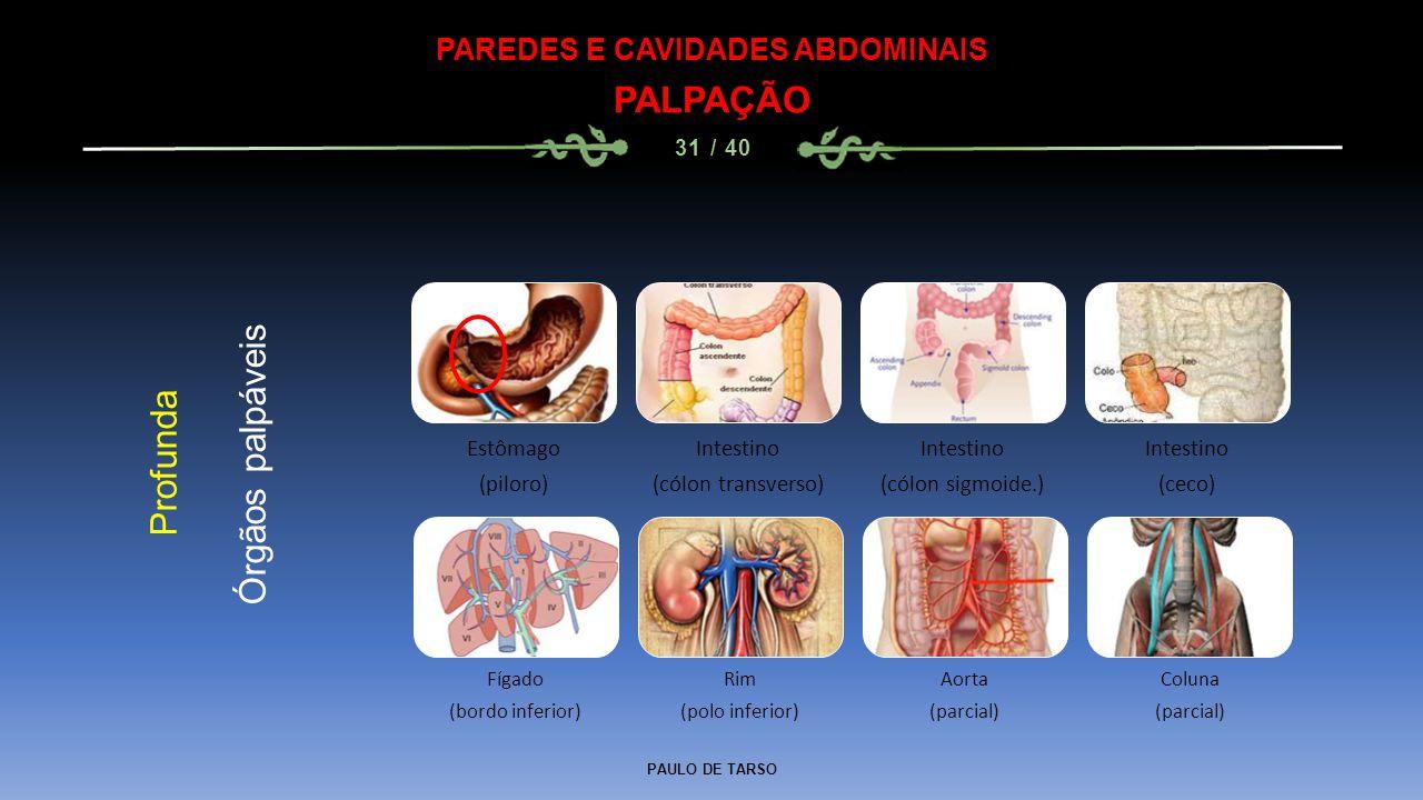 PAULO DE TARSO PAREDES E CAVIDADES ABDOMINAIS PALPAÇÃO 31 / 40 Profunda Órgãos palpáveis Estômago (piloro) Intestino (cólon transverso) Intestino (cólon sigmoide.) Intestino (ceco) Fígado (bordo inferior) Rim (polo inferior) Aorta (parcial) Coluna (parcial)