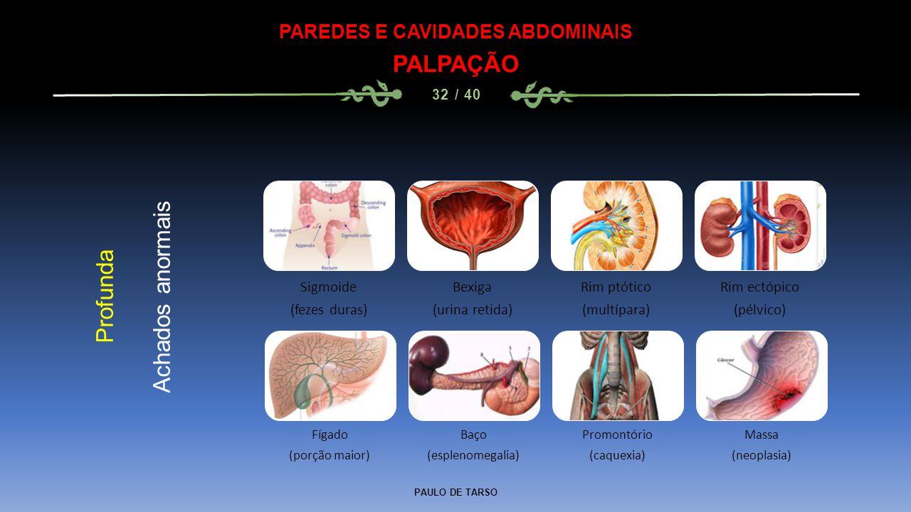PAULO DE TARSO PAREDES E CAVIDADES ABDOMINAIS PALPAÇÃO 32 / 40 Profunda Achados anormais Sigmoide (fezes duras) Bexiga (urina retida) Rim ptótico (multípara) Rim ectópico (pélvico) Fígado (porção maior) Baço (esplenomegalia) Promontório (caquexia) Massa (neoplasia)