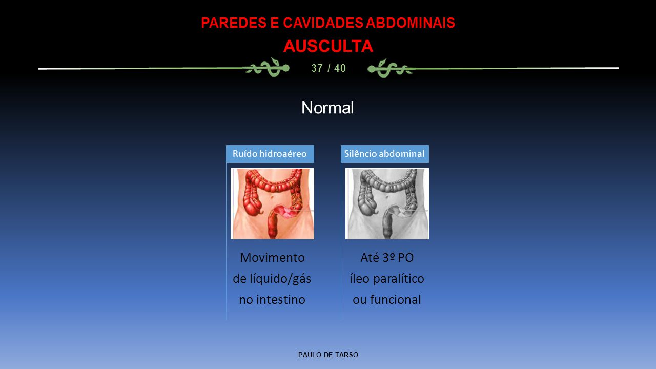 PAULO DE TARSO PAREDES E CAVIDADES ABDOMINAIS AUSCULTA 37 / 40 Normal Movimento de líquido/gás no intestino Ruído hidroaéreo Até 3º PO íleo paralítico ou funcional Silêncio abdominal