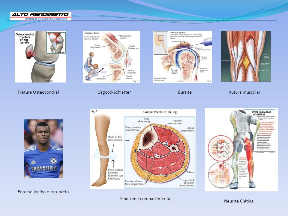 Entorse joelho e tornozelo Rutura muscularFratura OsteocondralOsgood-SchlatterBursite Neurite Ciática Síndrome compartimental