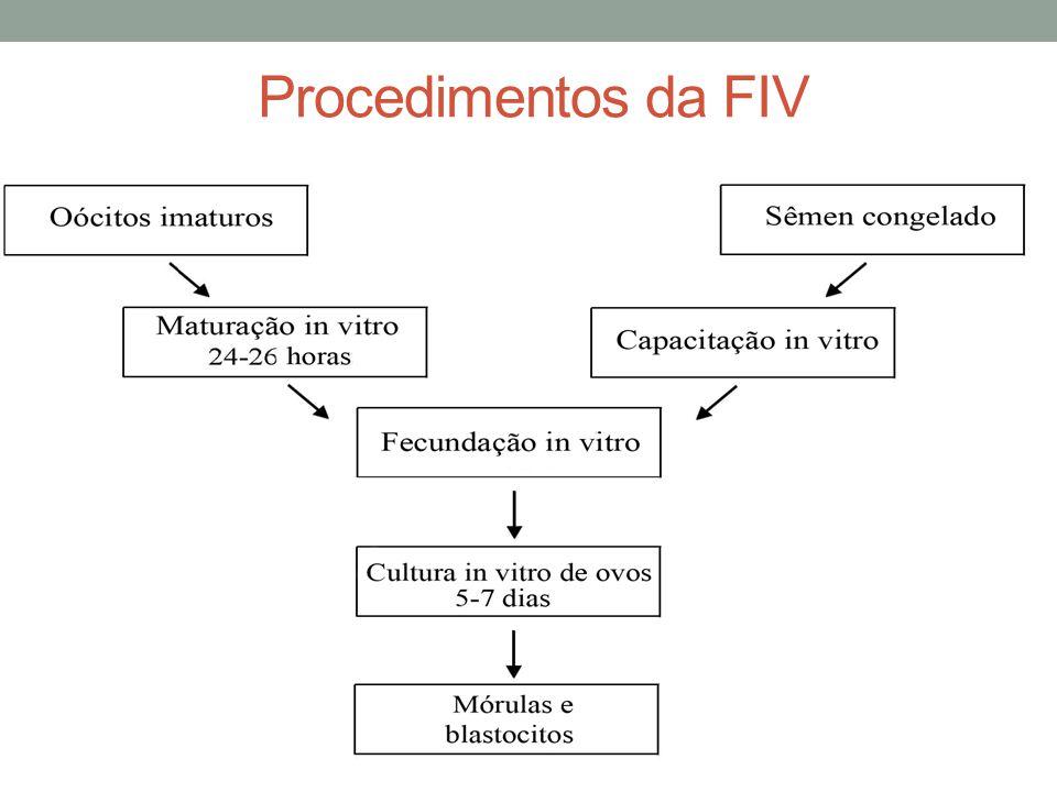 Procedimentos da FIV