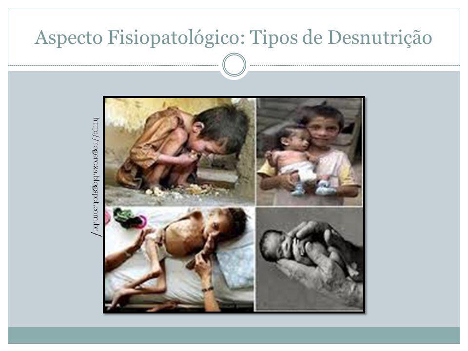 Aspecto Fisiopatológico: Tipos de Desnutrição http://rogeroxa.blogspot.com.br /