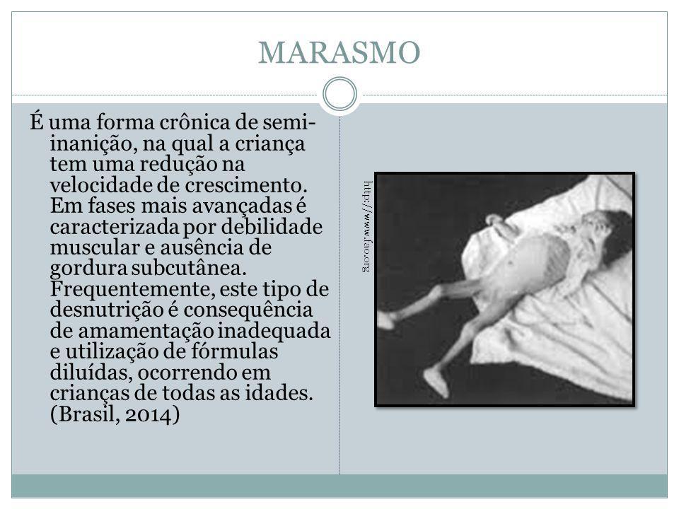 MARASMO É uma forma crônica de semi- inanição, na qual a criança tem uma redução na velocidade de crescimento. Em fases mais avançadas é caracterizada