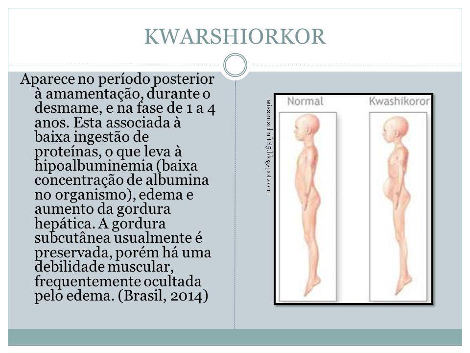 KWARSHIORKOR Aparece no período posterior à amamentação, durante o desmame, e na fase de 1 a 4 anos. Esta associada à baixa ingestão de proteínas, o q
