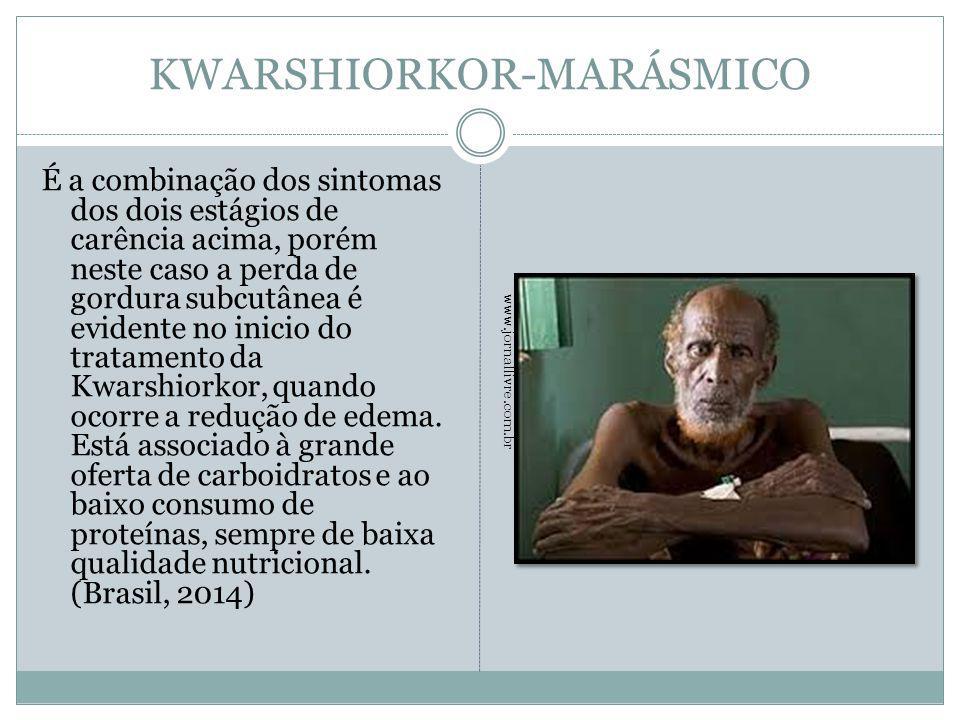 KWARSHIORKOR-MARÁSMICO É a combinação dos sintomas dos dois estágios de carência acima, porém neste caso a perda de gordura subcutânea é evidente no i