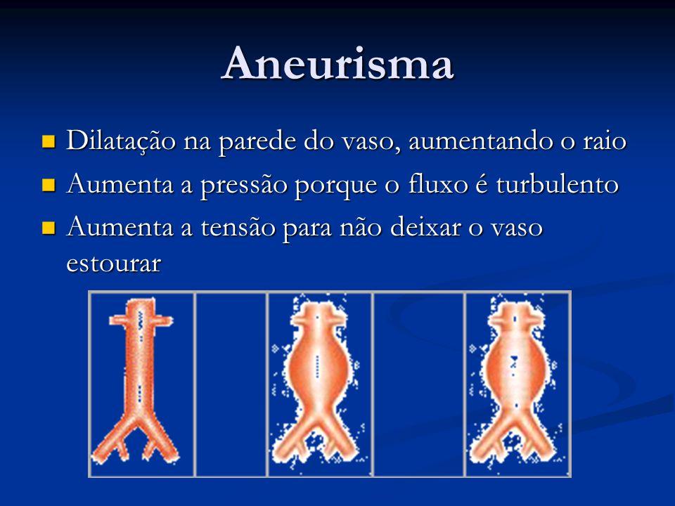 Aneurisma Dilatação na parede do vaso, aumentando o raio Dilatação na parede do vaso, aumentando o raio Aumenta a pressão porque o fluxo é turbulento