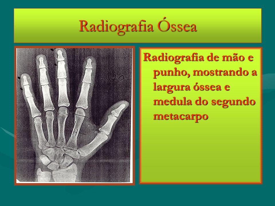 Radiografia Óssea Radiografia de mão e punho, mostrando a largura óssea e medula do segundo metacarpo
