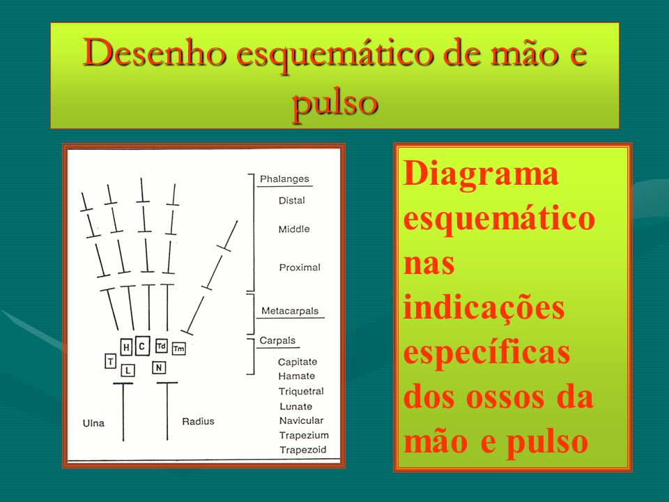 Desenho esquemático de mão e pulso Diagrama esquemático nas indicações específicas dos ossos da mão e pulso