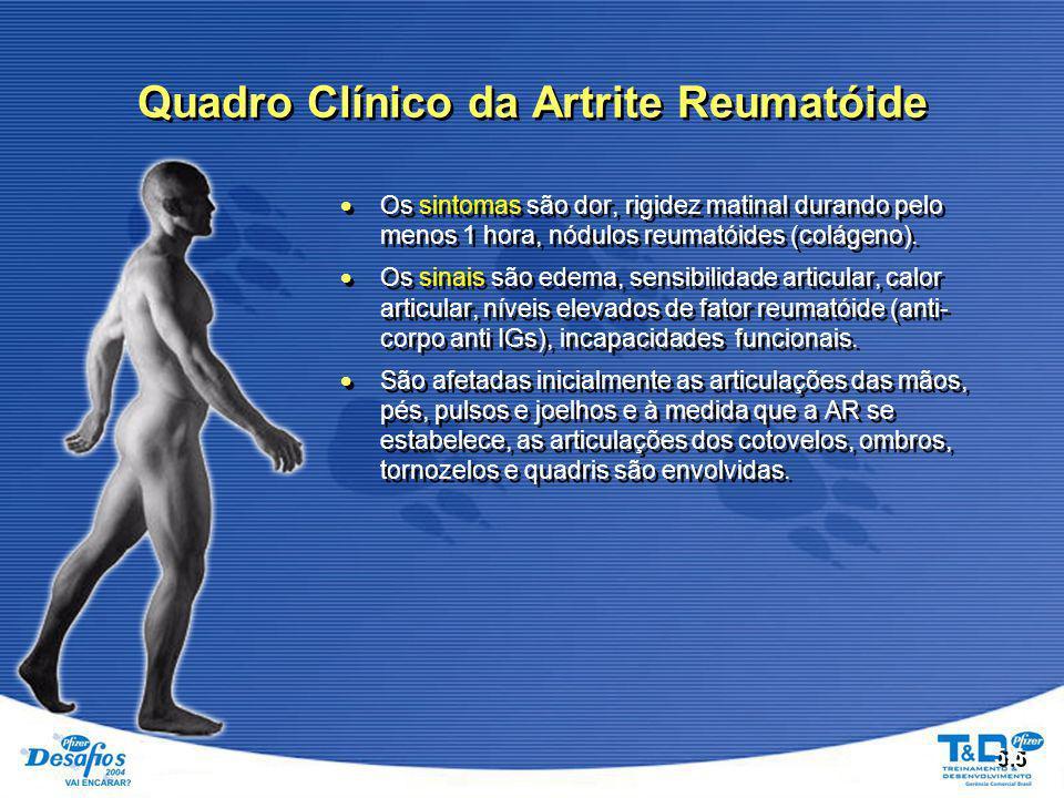5.5  Os sintomas são dor, rigidez matinal durando pelo menos 1 hora, nódulos reumatóides (colágeno).  Os sinais são edema, sensibilidade articular,