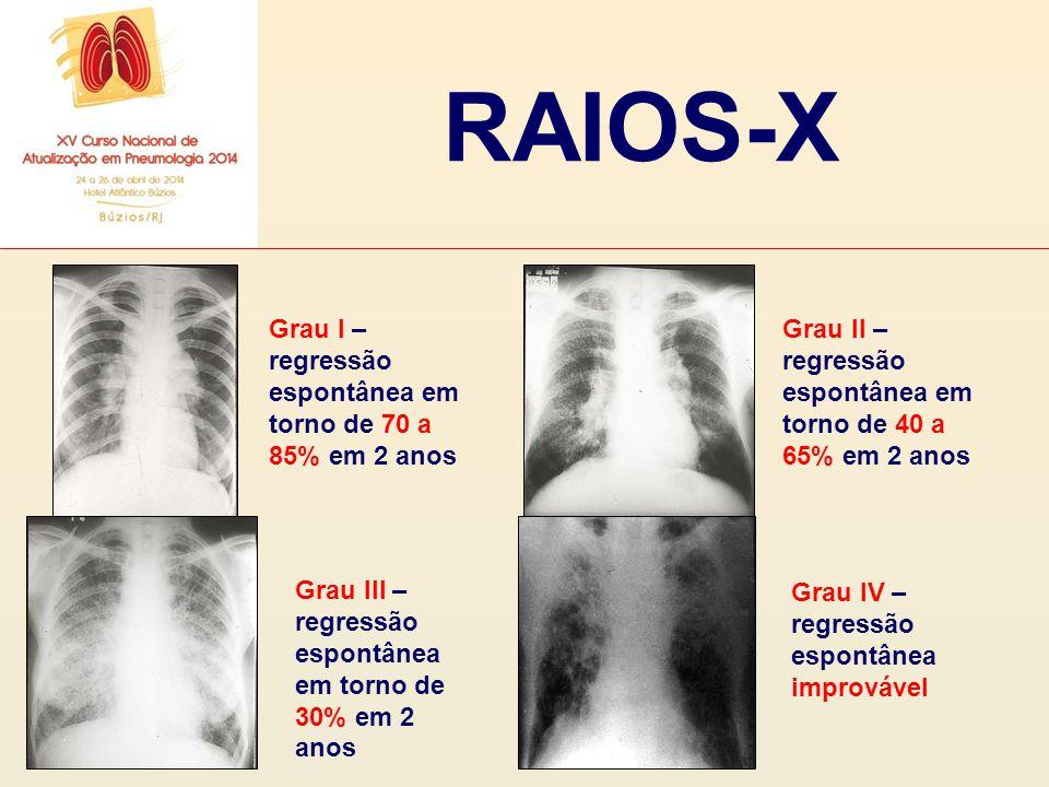 RAIOS-X Grau I – regressão espontânea em torno de 70 a 85% em 2 anos Grau II – regressão espontânea em torno de 40 a 65% em 2 anos Grau III – regressã
