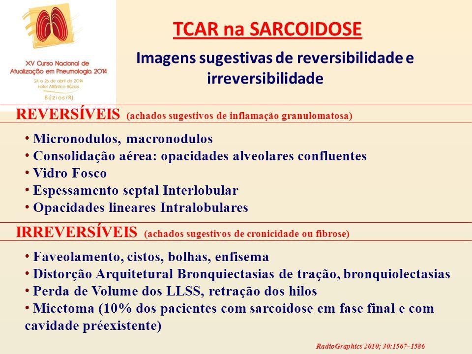 TCAR na SARCOIDOSE Imagens sugestivas de reversibilidade e irreversibilidade REVERSÍVEIS (achados sugestivos de inflamação granulomatosa) Micronodulos