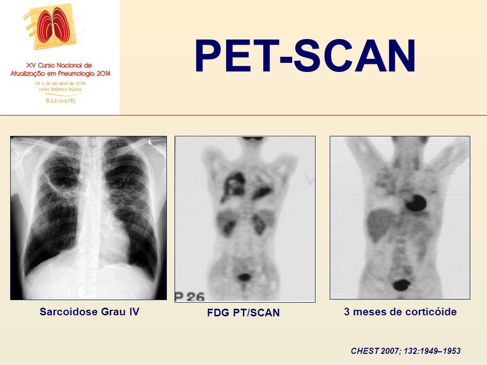 PET-SCAN Sarcoidose Grau IV FDG PT/SCAN 3 meses de corticóide CHEST 2007; 132:1949–1953