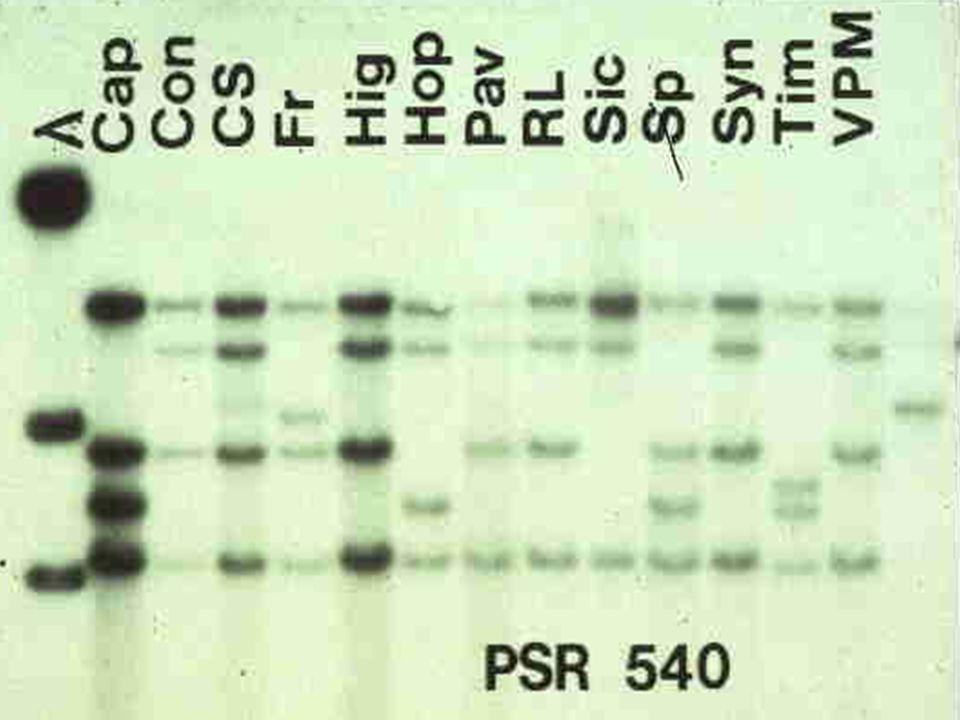 RFLP AUTORRADIOGRAFIA Extração de DNA Transferência Do DNA para membrana de nitrocelulose Gel de agarose: Separação dos fragmentos  Digestão total Hi
