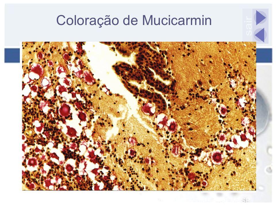 Coloração de Mucicarmin Fonte: Laboratório de Micologia – IMT – LIM – HC/FMUSP