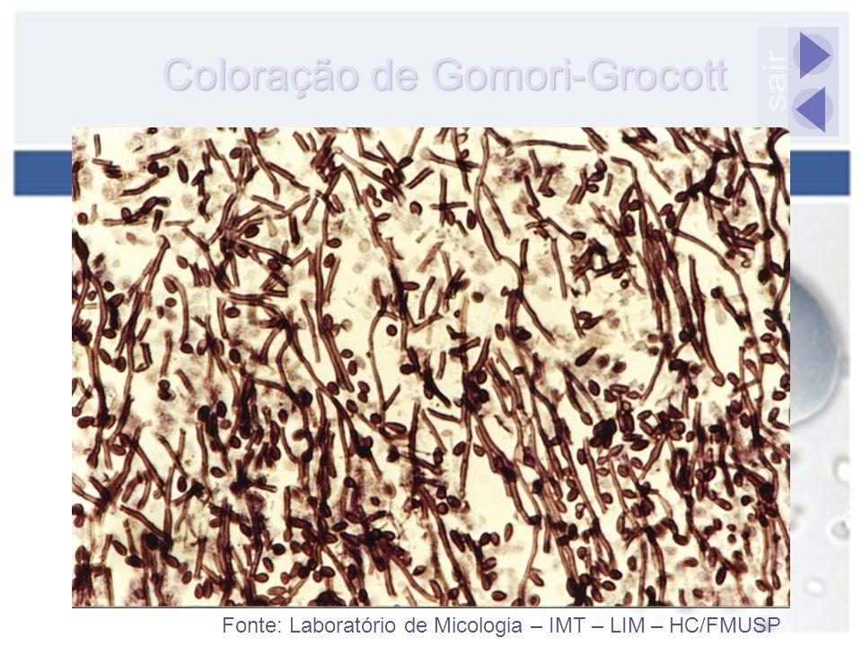 Coloração de Gomori-Grocott Fonte: Laboratório de Micologia – IMT – LIM – HC/FMUSP