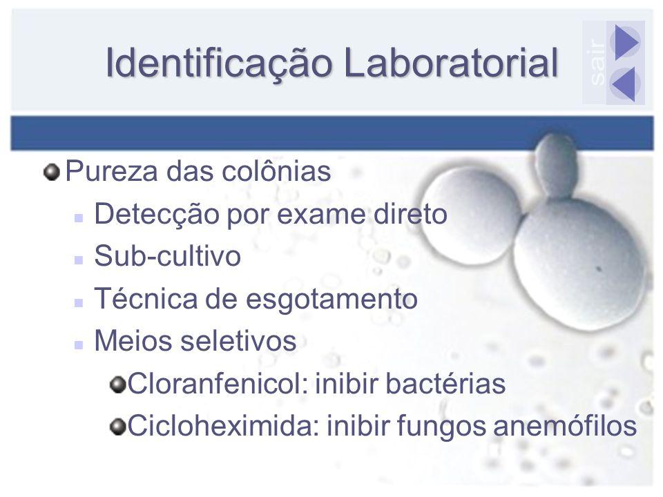 Identificação Laboratorial Pureza das colônias Detecção por exame direto Sub-cultivo Técnica de esgotamento Meios seletivos Cloranfenicol: inibir bact
