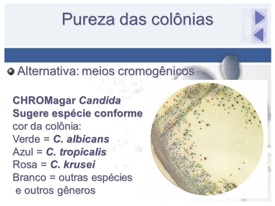 Pureza das colônias CHROMagar Candida Sugere espécie conforme cor da colônia: Verde = C. albicans Azul = C. tropicalis Rosa = C. krusei Branco = outra