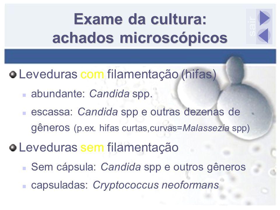 Exame da cultura: achados microscópicos Leveduras com filamentação (hifas) abundante: Candida spp. escassa: Candida spp e outras dezenas de gêneros (p