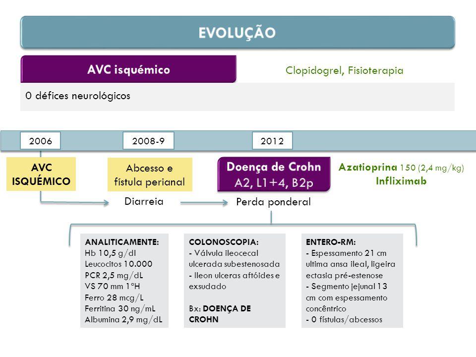 0 défices neurológicos Clopidogrel, Fisioterapia 2006 2012 AVC ISQUÉMICO Diarreia 2008-9 Abcesso e fístula perianal Perda ponderal ANALITICAMENTE: Hb 10,5 g/dl Leucocitos 10.000 PCR 2,5 mg/dL VS 70 mm 1ªH Ferro 28 mcg/L Ferritina 30 ng/mL Albumina 2,9 mg/dL COLONOSCOPIA: - Válvula ileocecal ulcerada subestenosada - Ileon ulceras aftóides e exsudado Bx: DOENÇA DE CROHN ENTERO-RM: - Espessamento 21 cm ultima ansa ileal, ligeira ectasia pré-estenose - Segmento jejunal 13 cm com espessamento concêntrico - 0 fístulas/abcessos Azatioprina 150 (2,4 mg/kg) Infliximab