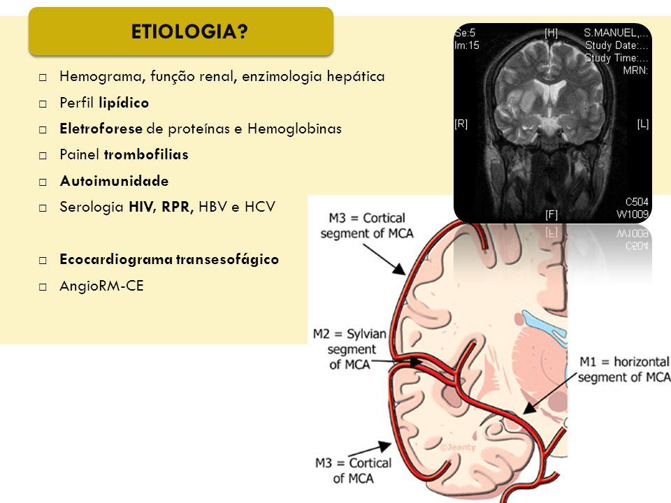  Hemograma, função renal, enzimologia hepática  Perfil lipídico  Eletroforese de proteínas e Hemoglobinas  Painel trombofilias  Autoimunidade  S
