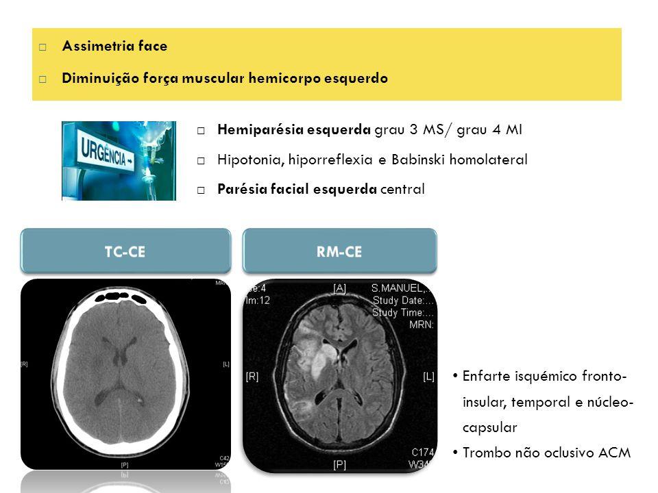  Assimetria face  Diminuição força muscular hemicorpo esquerdo  Hemiparésia esquerda grau 3 MS/ grau 4 MI  Hipotonia, hiporreflexia e Babinski homolateral  Parésia facial esquerda central Enfarte isquémico fronto- insular, temporal e núcleo- capsular Trombo não oclusivo ACM