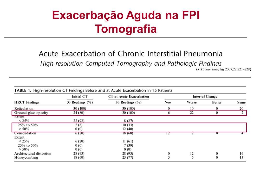 Exacerbação Aguda na FPI Tomografia