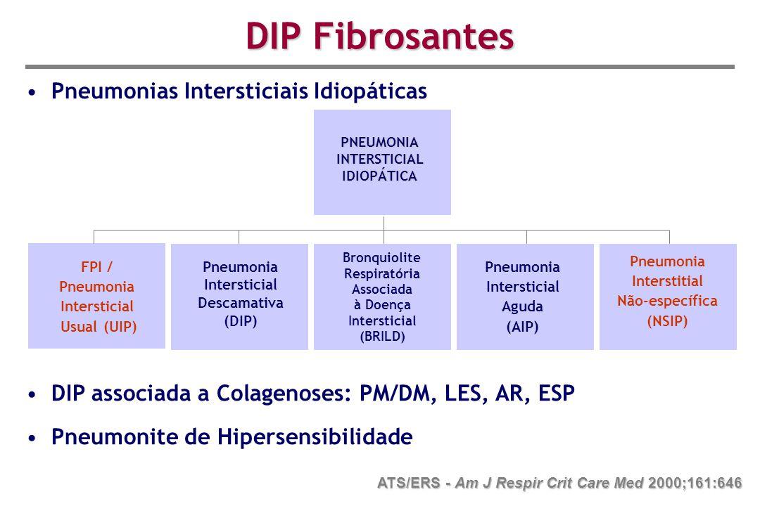 Pneumonias Intersticiais Idiopáticas DIP associada a Colagenoses: PM/DM, LES, AR, ESP Pneumonite de Hipersensibilidade ATS/ERS - Am J Respir Crit Care