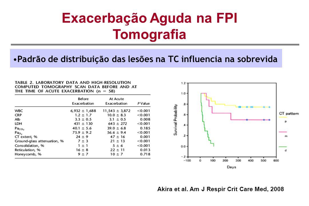 Exacerbação Aguda na FPI Tomografia Padrão de distribuição das lesões na TC influencia na sobrevida Akira et al. Am J Respir Crit Care Med, 2008