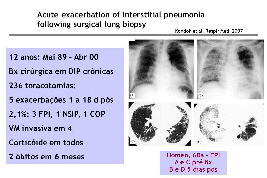 Homen, 60a - FPI A e C pré Bx B e D 5 dias pós 12 anos: Mai 89 – Abr 00 Bx cirúrgica em DIP crônicas 236 toracotomias: 5 exacerbações 1 a 18 d pós 2,1