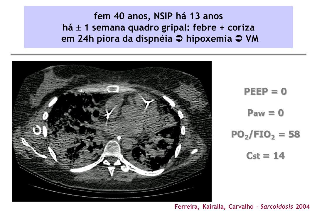 Ferreira, Kairalla, Carvalho - Sarcoidosis 2004 PEEP = 0 P aw = 0 PO 2 /FIO 2 = 58 C st = 14 fem 40 anos, NSIP há 13 anos há  1 semana quadro gripal: