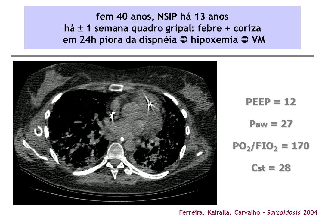 Ferreira, Kairalla, Carvalho - Sarcoidosis 2004 PEEP = 12 P aw = 27 PO 2 /FIO 2 = 170 C st = 28