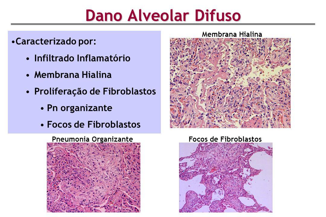 Dano Alveolar Difuso Caracterizado por: Infiltrado Inflamatório Membrana Hialina Proliferação de Fibroblastos Pn organizante Focos de Fibroblastos Mem