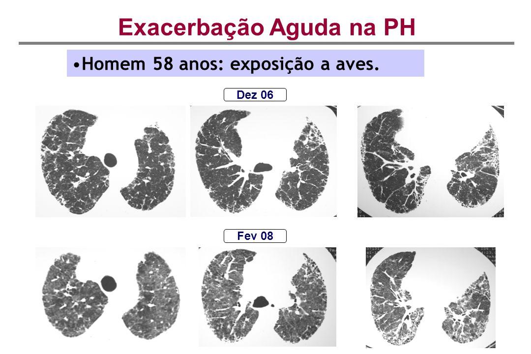 Dez 06 Fev 08 Exacerbação Aguda na PH Homem 58 anos: exposição a aves.