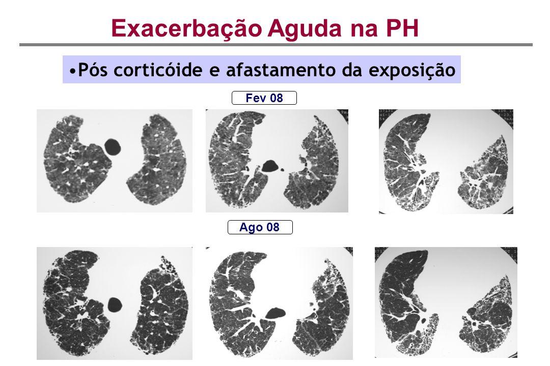 Exacerbação Aguda na PH Ago 08 Pós corticóide e afastamento da exposição Fev 08
