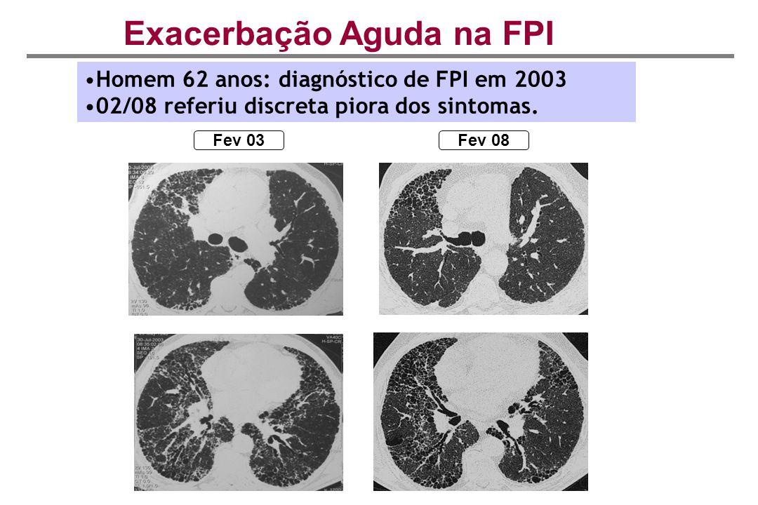 Fev 03Fev 08 Exacerbação Aguda na FPI Homem 62 anos: diagnóstico de FPI em 2003 02/08 referiu discreta piora dos sintomas.