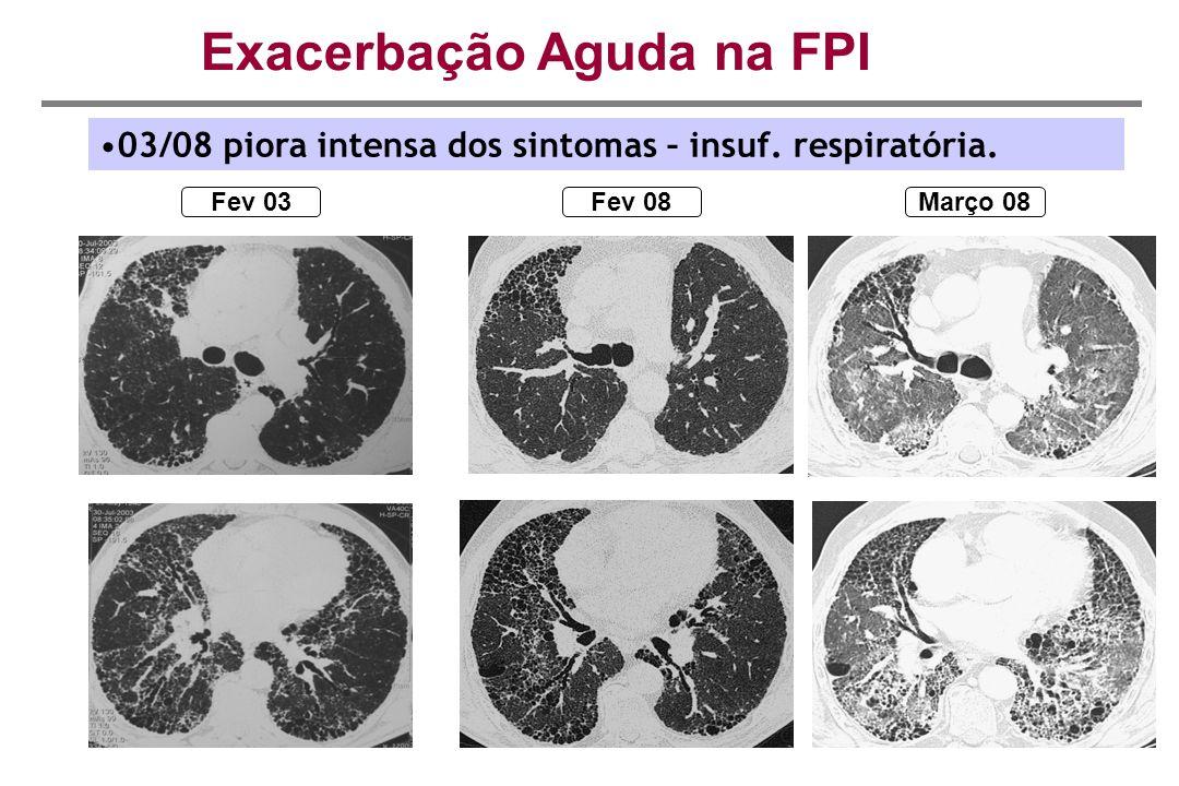Fev 03Fev 08 Exacerbação Aguda na FPI Março 08 03/08 piora intensa dos sintomas – insuf. respiratória.