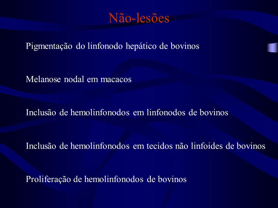 Alterações circulatórias Edema nodal (ou drenagem de edema) Hemorragia nodal (ou drenagem de eritrócitos) → Hemossiderose nodal
