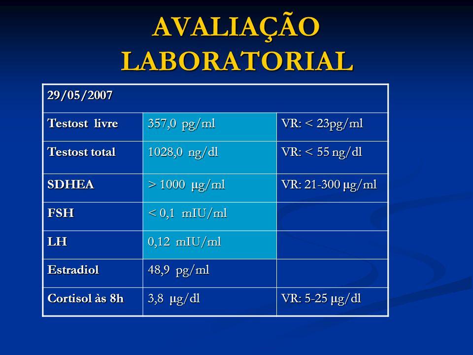AVALIAÇÃO LABORATORIAL 29/05/2007 Testost livre 357,0 pg/ml VR: < 23pg/ml Testost total 1028,0 ng/dl VR: < 55 ng/dl SDHEA > 1000 μ g/ml VR: 21-300 μ g/ml FSH < 0,1 mIU/ml LH 0,12 mIU/ml Estradiol 48,9 pg/ml Cortisol às 8h 3,8 μ g/dl VR: 5-25 μ g/dl