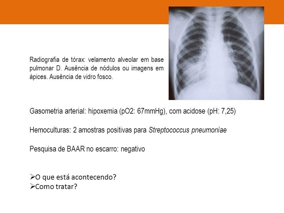 Gasometria arterial: hipoxemia (pO2: 67mmHg), com acidose (pH: 7,25) Hemoculturas: 2 amostras positivas para Streptococcus pneumoniae Pesquisa de BAAR
