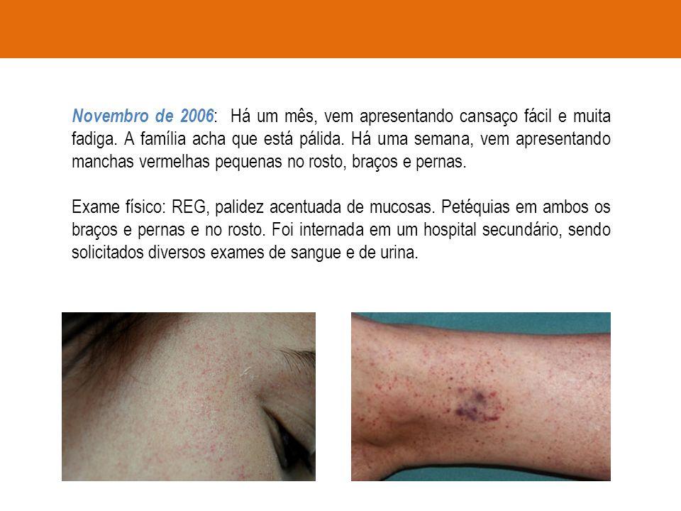 Novembro de 2006 : Há um mês, vem apresentando cansaço fácil e muita fadiga. A família acha que está pálida. Há uma semana, vem apresentando manchas v