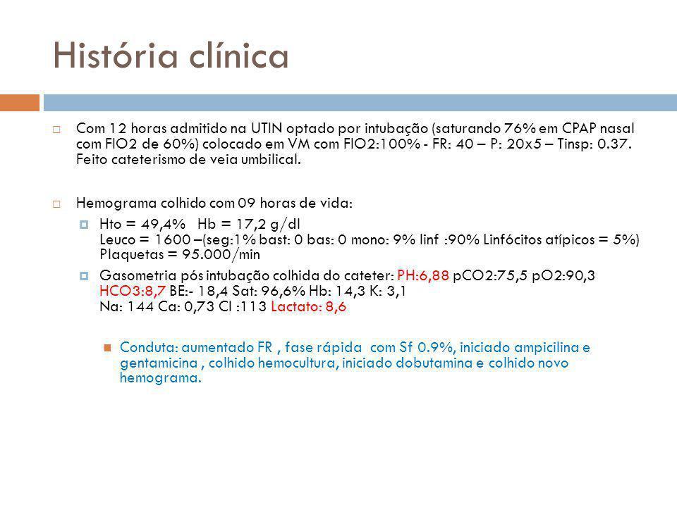 História clínica  Com 12 horas admitido na UTIN optado por intubação (saturando 76% em CPAP nasal com FIO2 de 60%) colocado em VM com FIO2:100% - FR: