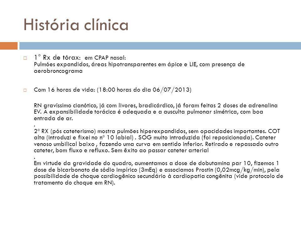 História clínica  1° Rx de tórax: em CPAP nasal: Pulmóes expandidos, áreas hipotransparentes em ápice e LIE, com presença de aerobroncograma  Com 16