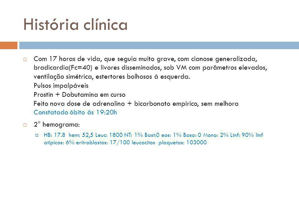 História clínica  Com 17 horas de vida, que seguia muito grave, com cianose generalizada, bradicardia(Fc=40) e livores disseminados, sob VM com parâm